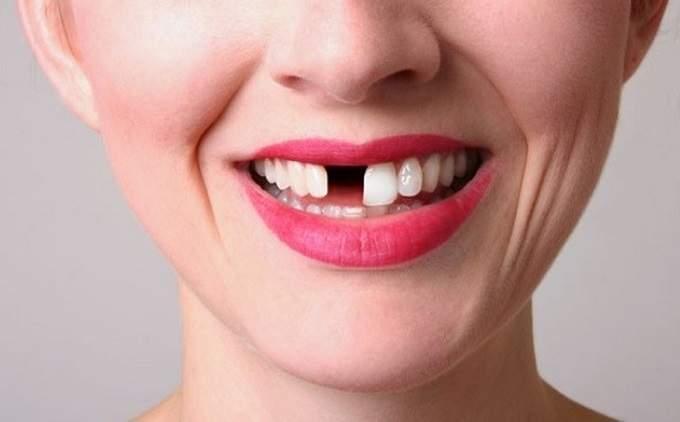 Mơ thấy rụng răng mang điềm báo gì? Đánh số đề con gì?