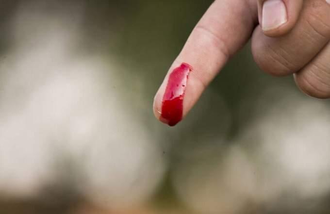 Giấc mơ thấy máu mang lại điềm báo tốt hay xấu?